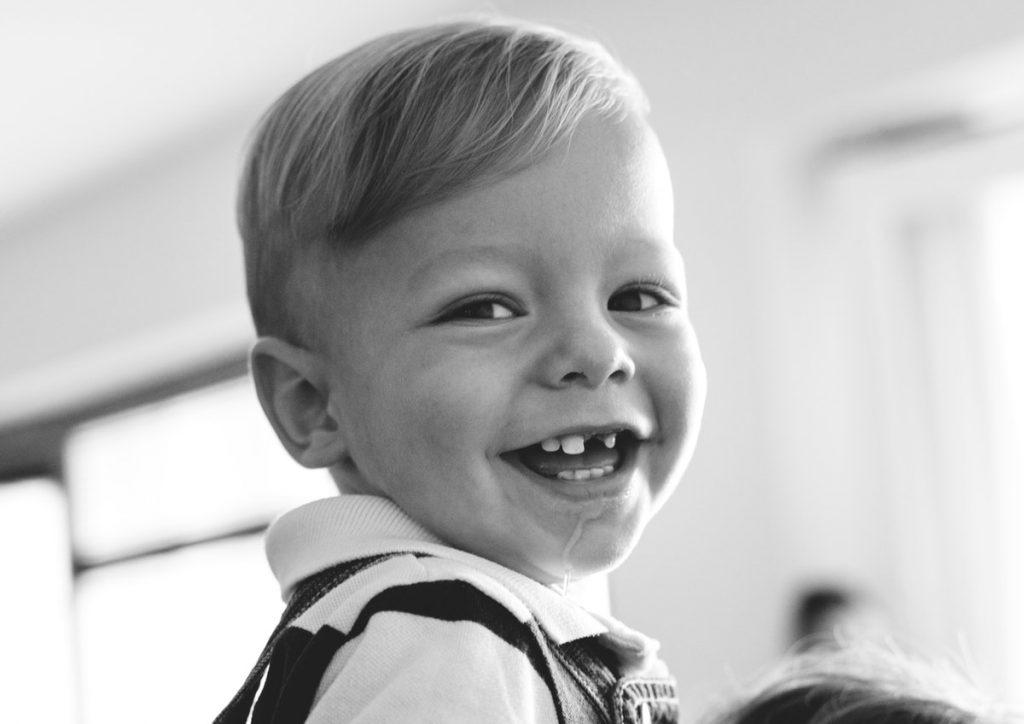 היפודונטיה – חוסר שיניים מולד